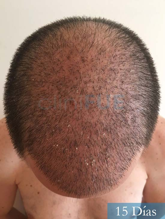 Carlos-34-Valencia-trasplante-capilar-turquia-15 dias 2