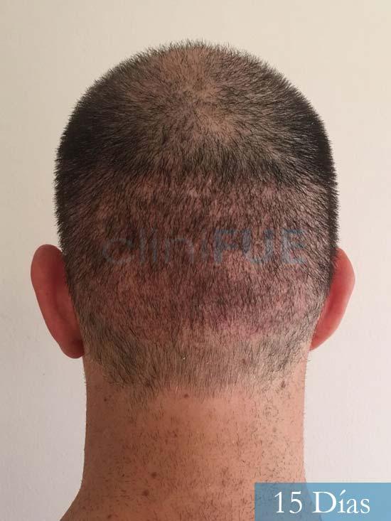 Carlos-34-Valencia-trasplante-capilar-turquia-15 dias 5