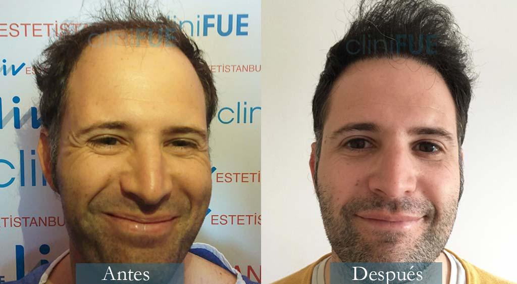 Trasplante capilar Carlos 35 anos Valencia clinifue
