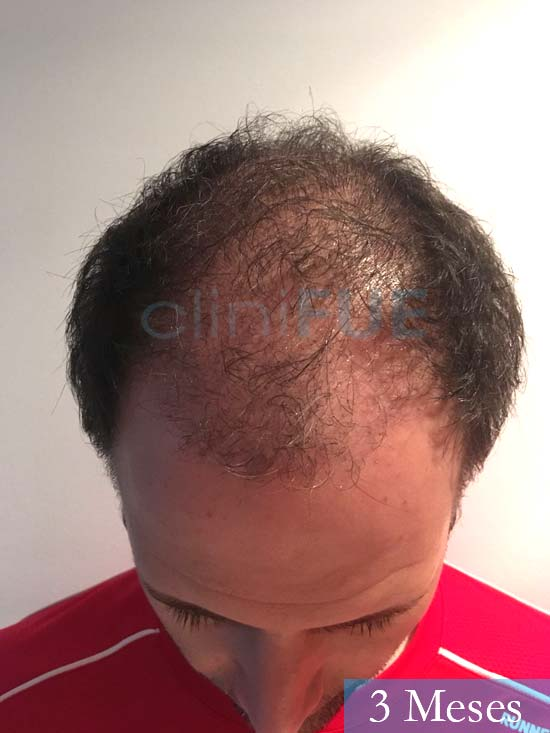 Carlos-34-Valencia-trasplante-capilar-turquia- 3 meses