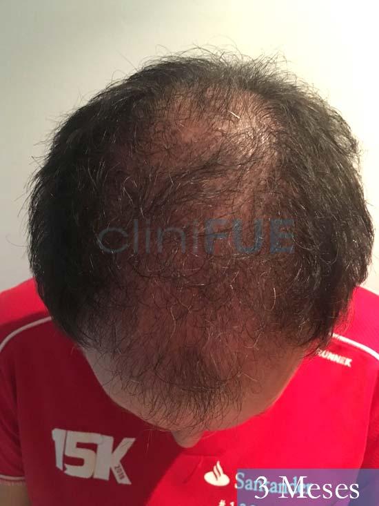 Carlos-34-Valencia-trasplante-capilar-turquia- 3 meses 2