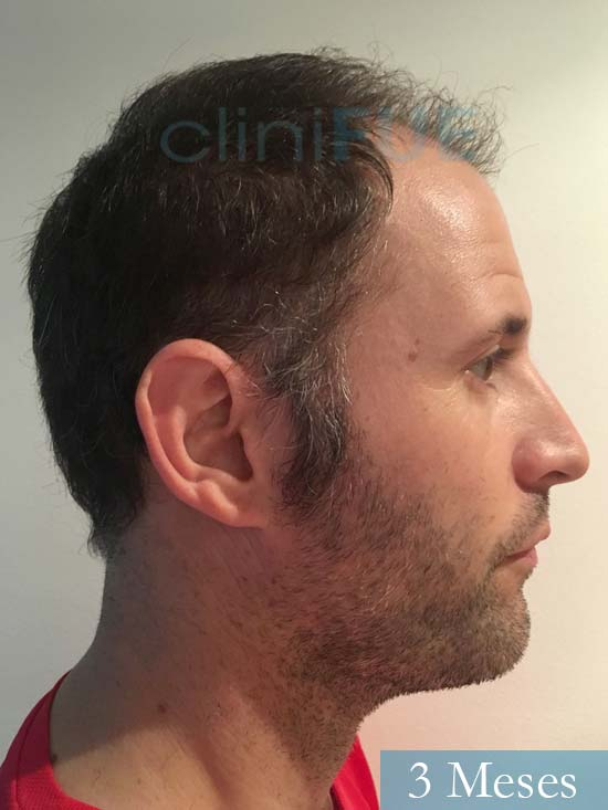 Carlos-34-Valencia-trasplante-capilar-turquia- 3 meses 3