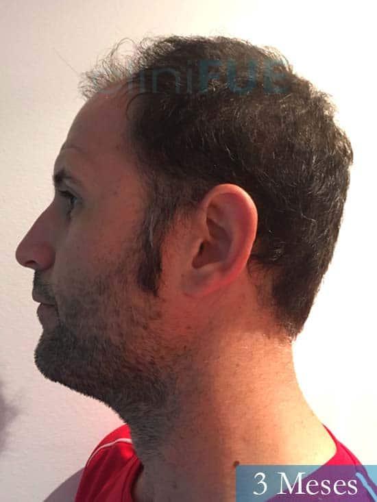 Carlos-34-Valencia-trasplante-capilar-turquia- 3 meses 4