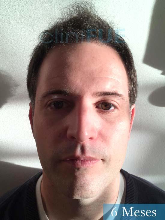 Carlos-34-Valencia-trasplante-capilar-turquia- 6 meses