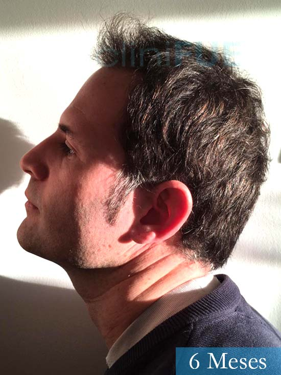 Carlos-34-Valencia-trasplante-capilar-turquia- 6 meses 4