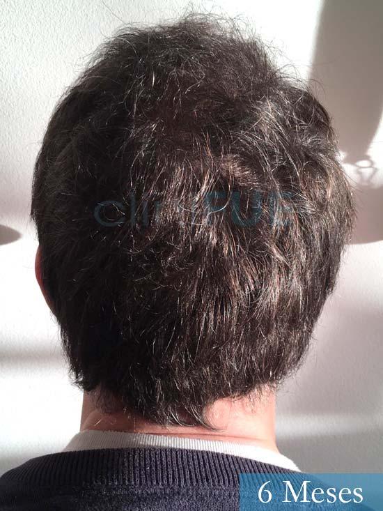 Carlos-34-Valencia-trasplante-capilar-turquia- 6 meses 5