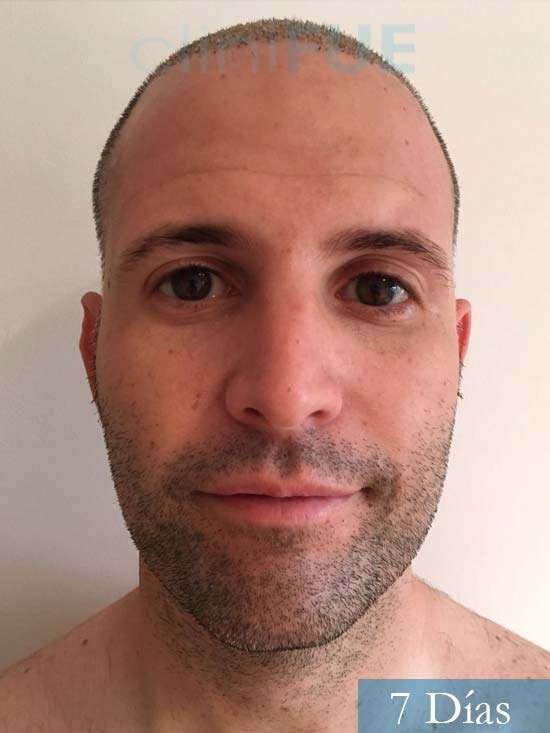 Carlos-34-Valencia-trasplante-capilar-turquia-7 dias