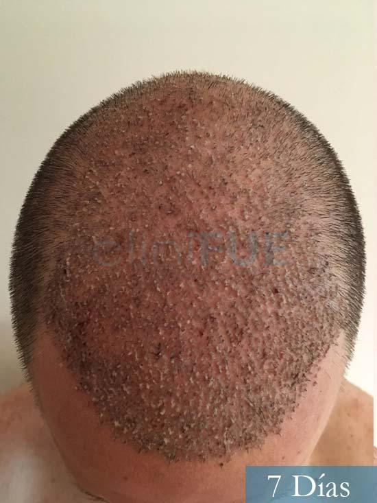 Carlos-34-Valencia-trasplante-capilar-turquia-7 dias 2