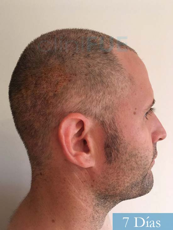 Carlos-34-Valencia-trasplante-capilar-turquia-7 dias 3