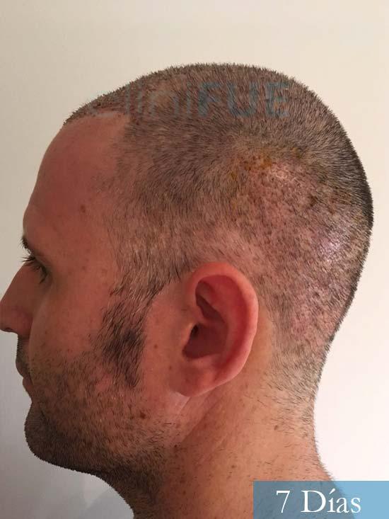 Carlos-34-Valencia-trasplante-capilar-turquia-7 dias 4
