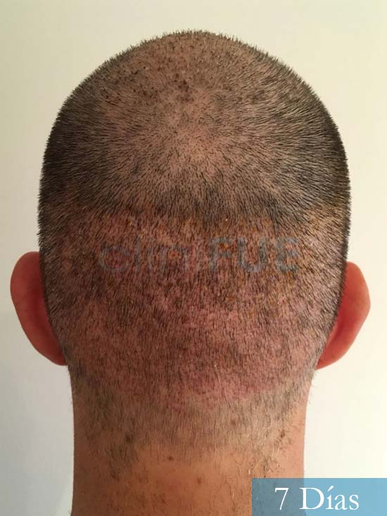 Carlos-34-Valencia-trasplante-capilar-turquia-7 dias 5