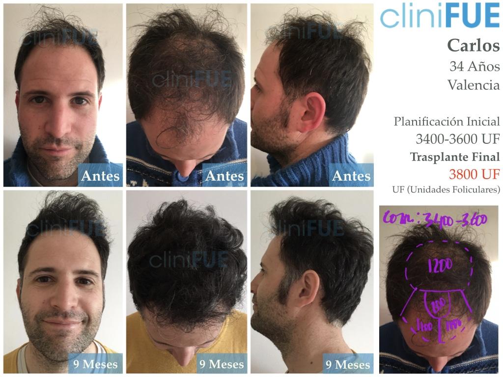 Carlos-34-Valencia-trasplante-capilar-turquia-