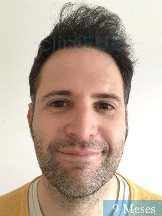 Carlos-34-Valencia-trasplante-capilar-turquia- 9 meses