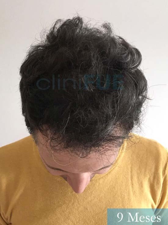 Carlos-34-Valencia-trasplante-capilar-turquia- 9 meses 2