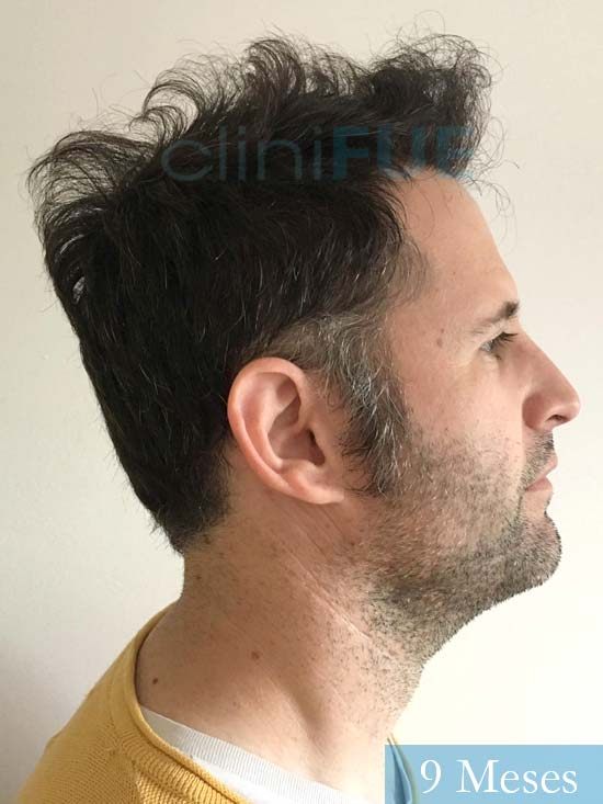Carlos-34-Valencia-trasplante-capilar-turquia- 9 meses 3