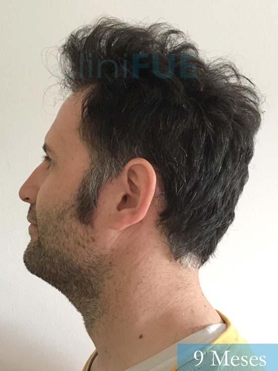 Carlos-34-Valencia-trasplante-capilar-turquia- 9 meses 4