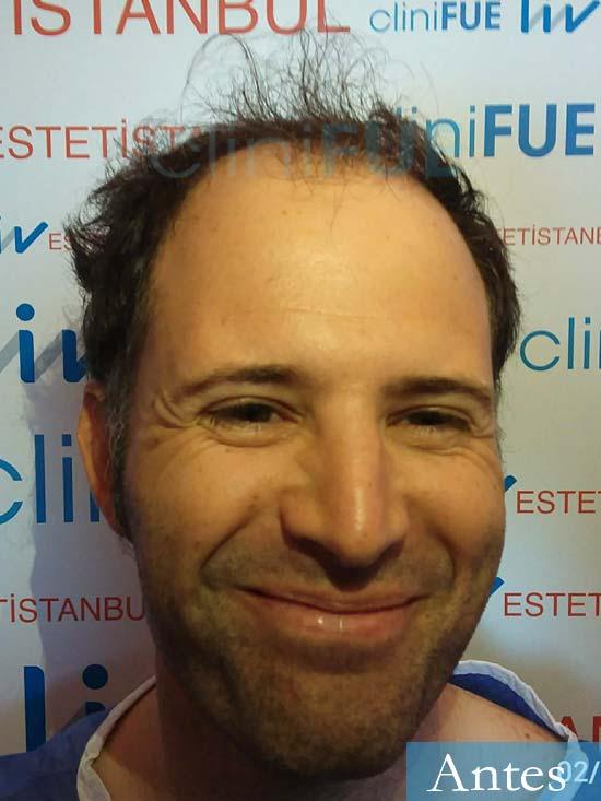 Carlos 34 Valencia trasplante capilar turquia antes dia operacion