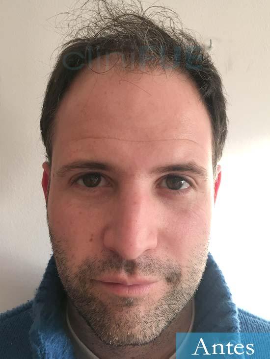 Carlos 34 Valencia trasplante capilar turquia antes