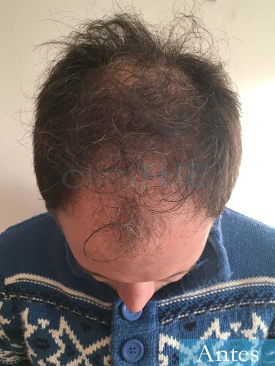 Carlos 34 Valencia trasplante capilar turquia antes 2