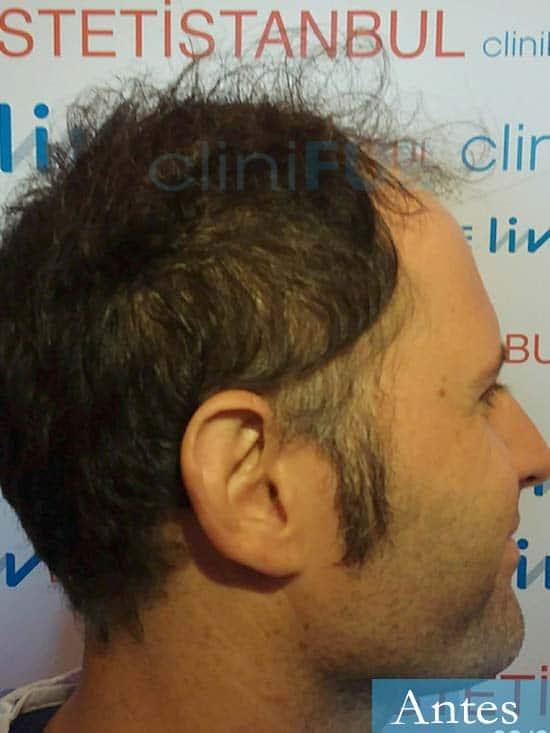 Carlos 34 Valencia trasplante capilar turquia antes dia operacion 3