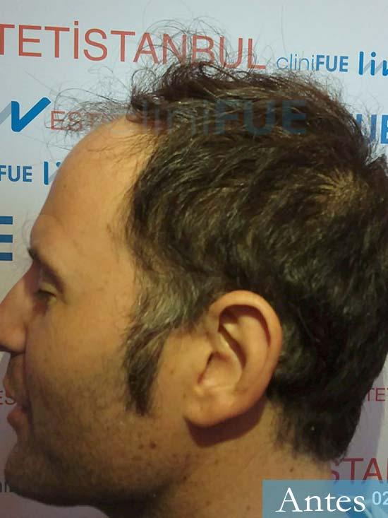 Carlos 34 Valencia trasplante capilar turquia antes dia operacion 4