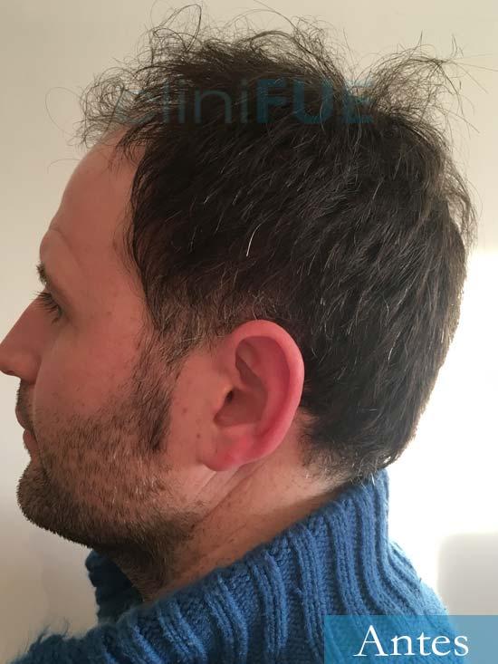 Carlos 34 Valencia trasplante capilar turquia antes 4