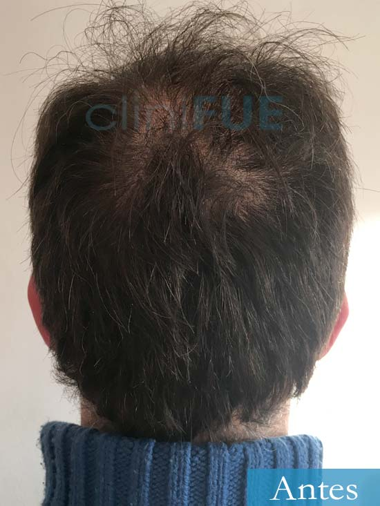 Carlos 34 Valencia trasplante capilar turquia antes 5
