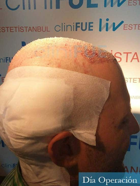 Carlos-34-Valencia-trasplante-capilar-turquia-dia-operacion 3