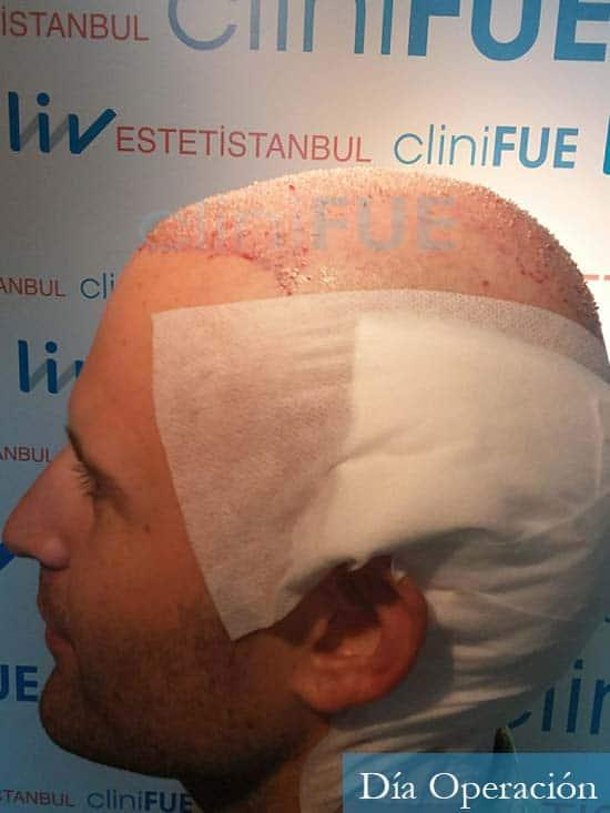 Carlos-34-Valencia-trasplante-capilar-turquia-dia-operacion 4