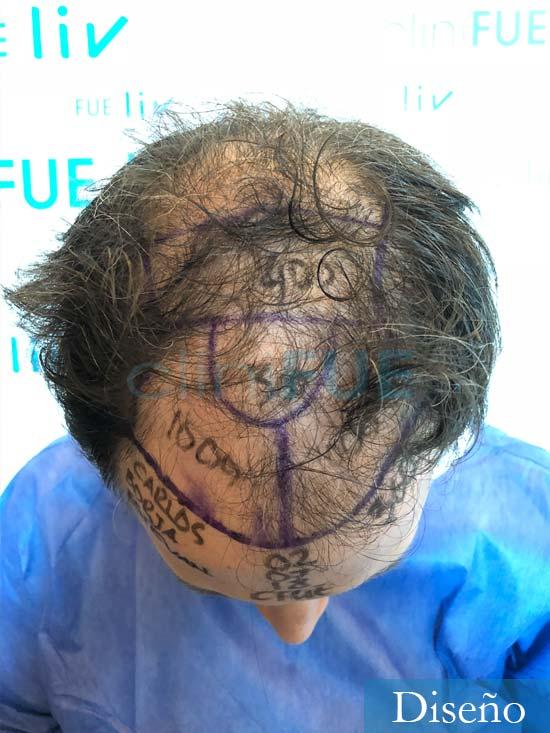 Carlos-34-Valencia-trasplante-capilar-turquia-dia-operacion diseno 2