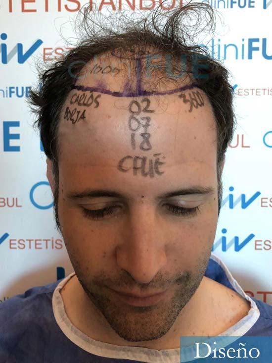 Carlos-34-Valencia-trasplante-capilar-turquia-dia-operacion diseno
