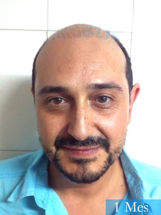 Cesar 40 anos Madrid injerto pelo turquia 1 mes