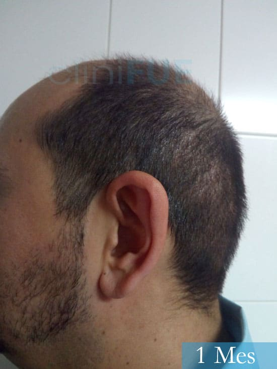 Cesar 40 anos Madrid injerto pelo turquia 1 mes 4