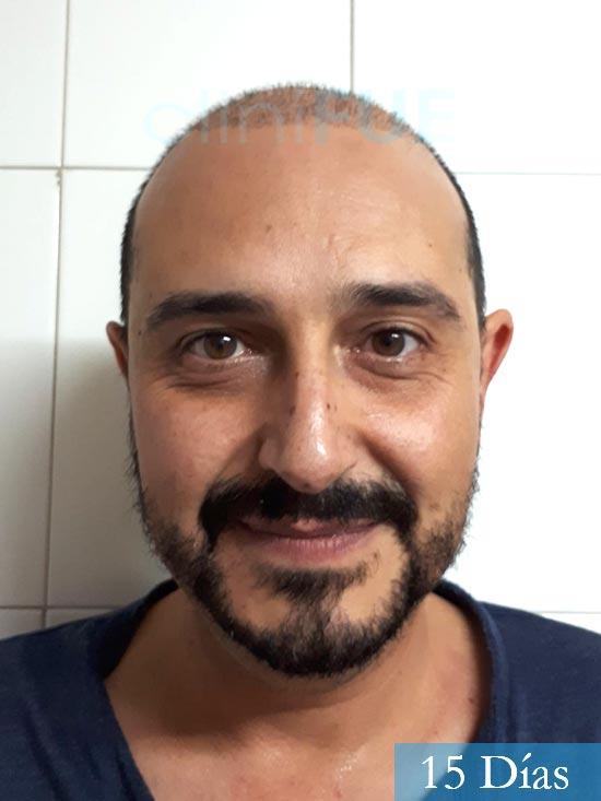 Cesar 40 anos Madrid injerto pelo turquia 15 dias