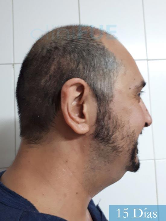 Cesar 40 anos Madrid injerto pelo turquia 15 dias 3