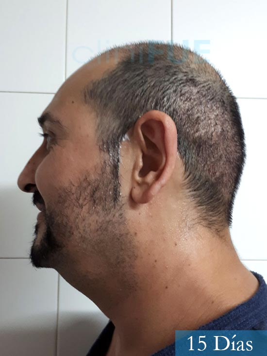 Cesar 40 anos Madrid injerto pelo turquia 15 dias 4