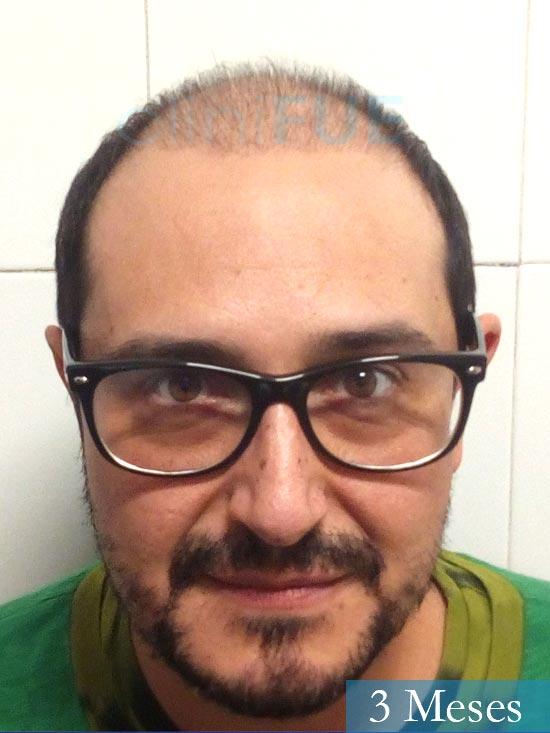 Cesar 40 anos Madrid injerto pelo turquia 3 meses