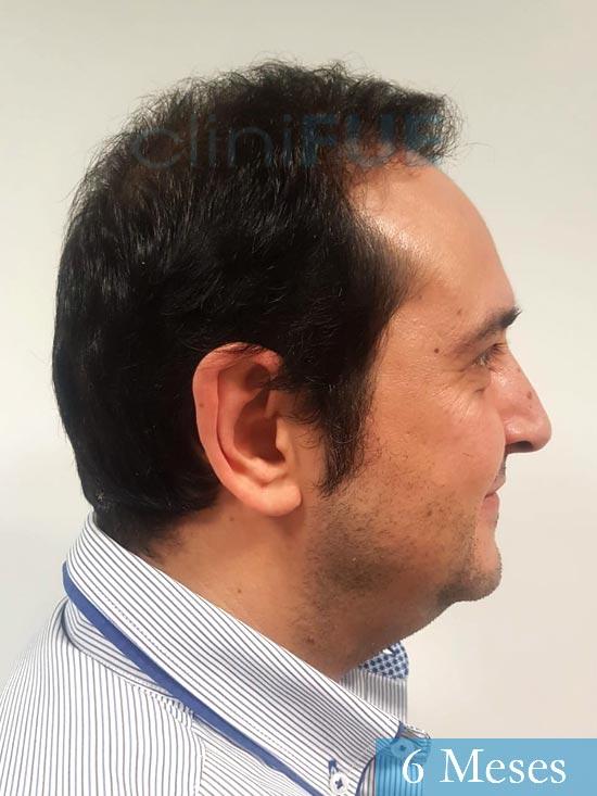 Cesar 40 anos Madrid injerto pelo turquia 6 meses 2