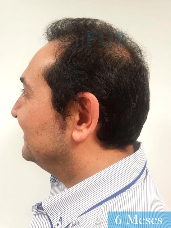 Cesar 40 anos Madrid injerto pelo turquia 6 meses 3