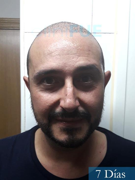 Cesar 40 anos Madrid injerto pelo turquia 7 dias