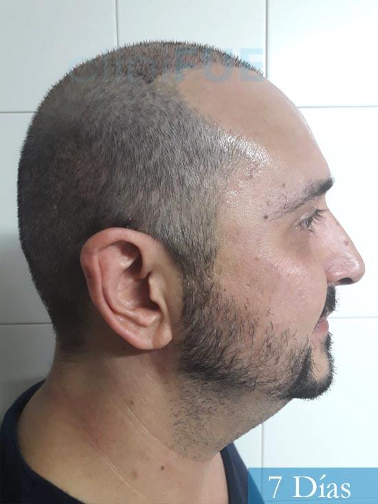 Cesar 40 anos Madrid injerto pelo turquia 7 dias 3