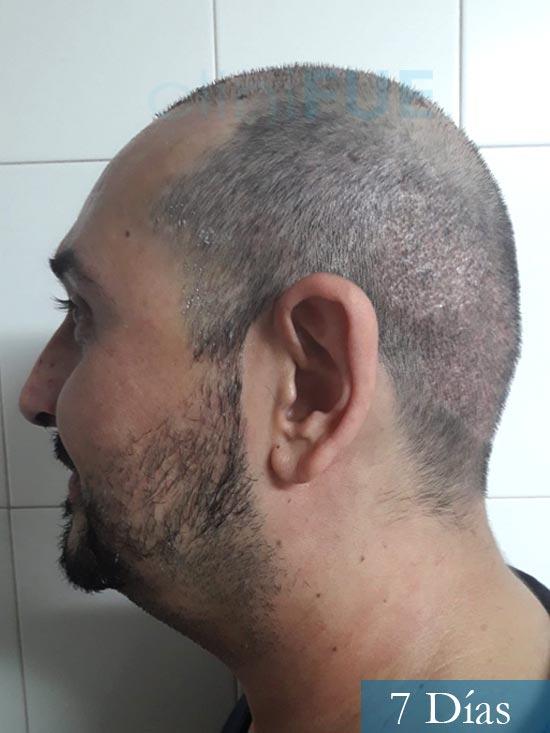 Cesar 40 anos Madrid injerto pelo turquia 7 dias 4