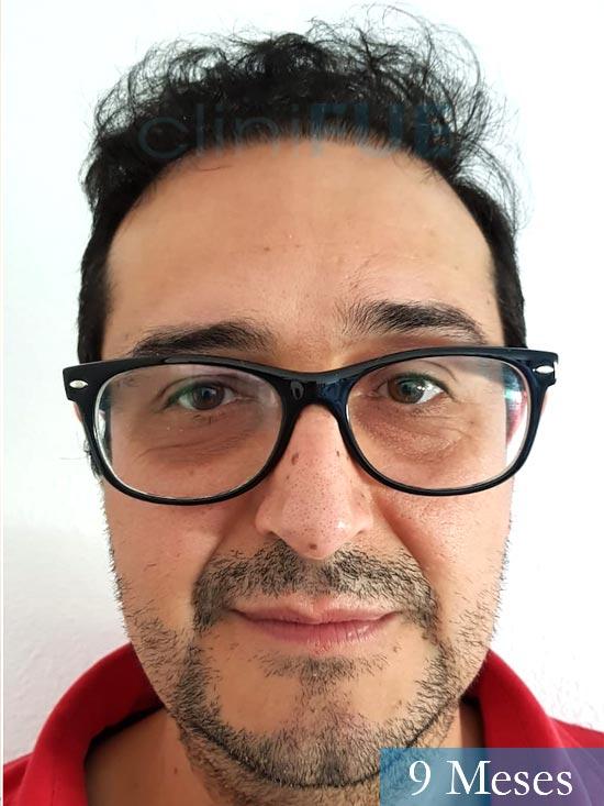 Cesar 40 anos Madrid injerto pelo turquia 9 meses