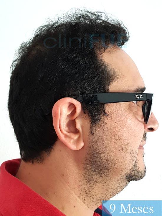 Cesar 40 anos Madrid injerto pelo turquia 9 meses 3