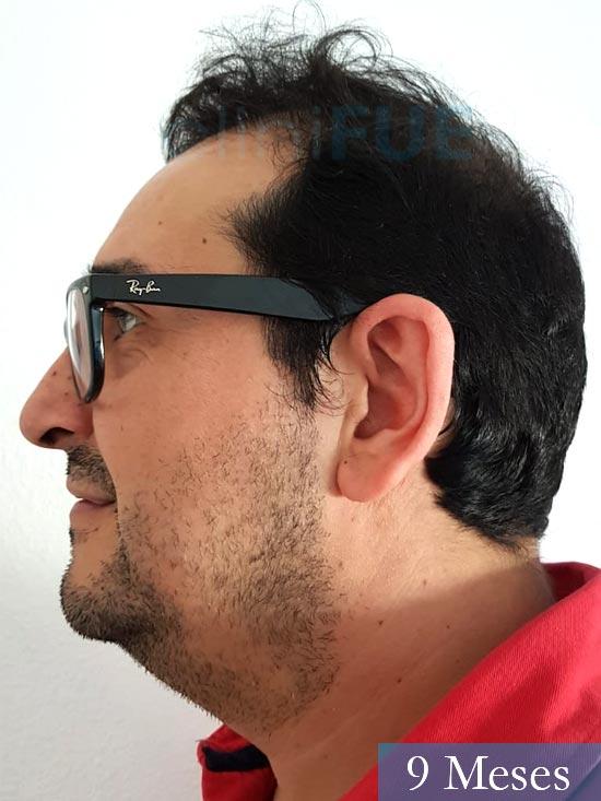 Cesar 40 anos Madrid injerto pelo turquia 9 meses 4