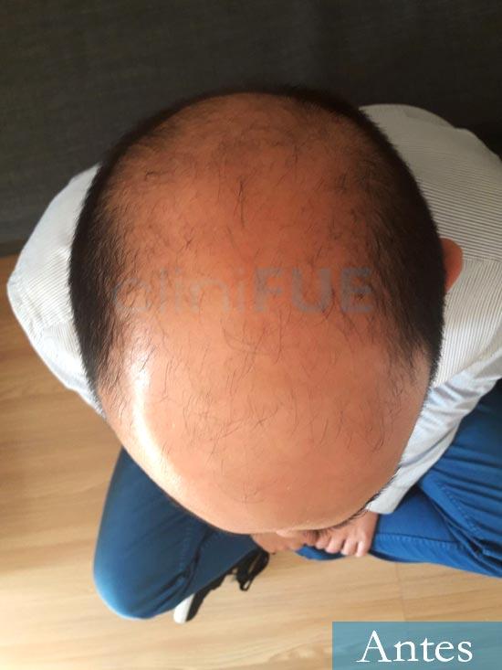 Cesar 40 anos Madrid injerto pelo turquia antes 3
