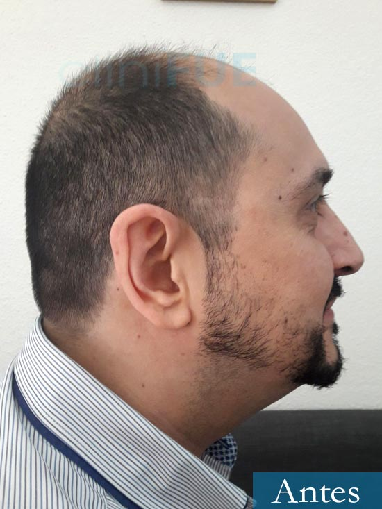 Cesar 40 anos Madrid injerto pelo turquia antes 4