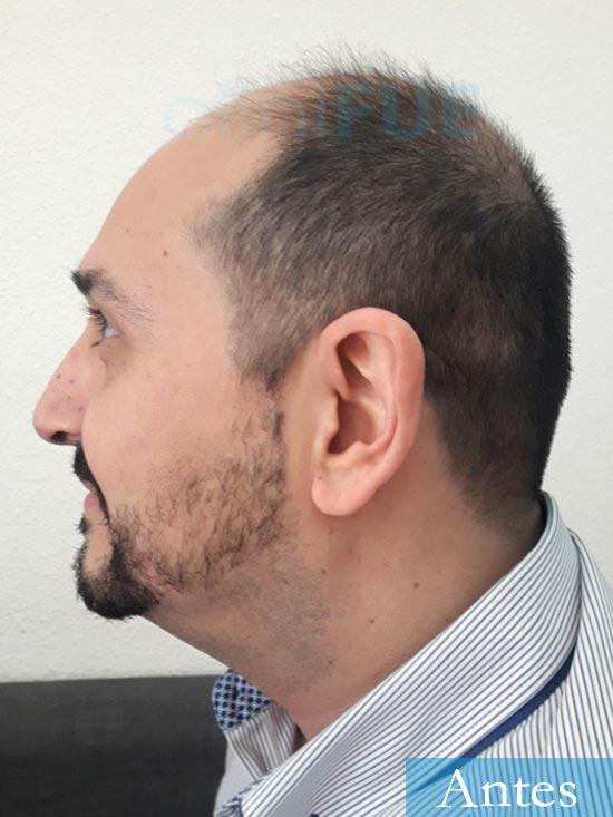 Cesar 40 anos Madrid injerto pelo turquia antes 5