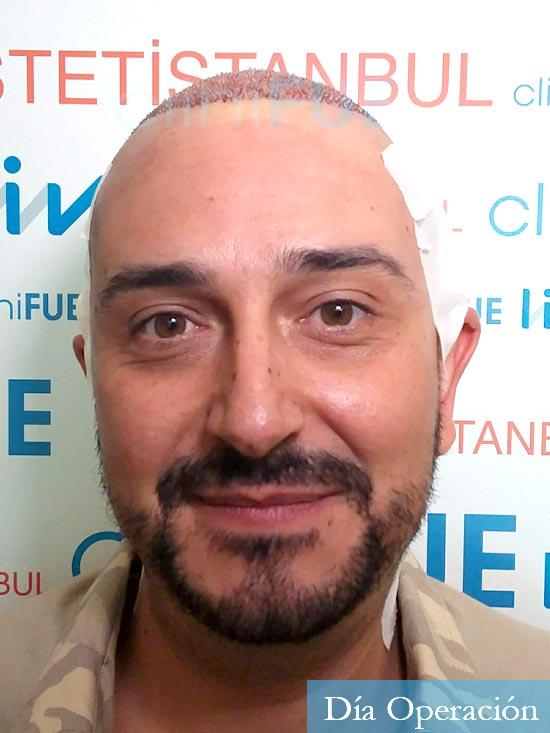 Cesar 40 anos Madrid injerto pelo turquia dia operacion