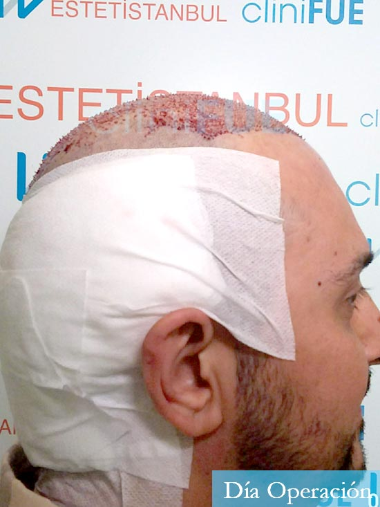 Cesar 40 anos Madrid injerto pelo turquia dia operacion 3